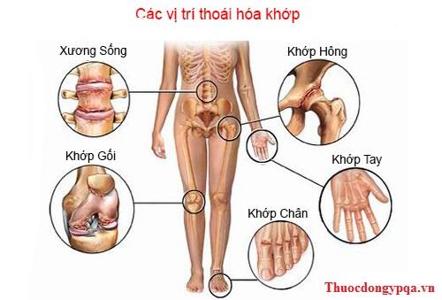 Các vị trí thoái hóa khớp, đau nhức xương khớp - Dược phẩm PQA