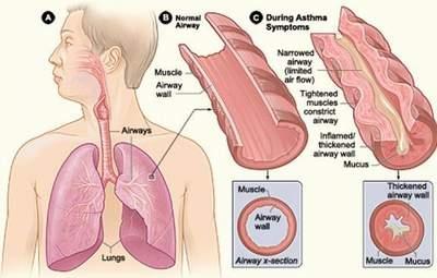Bệnh viêm tiểu phế quản