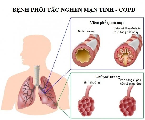 Điều trị Hen Suyễn, Hen Phế Quản, COPD bằng đông y