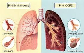 Điều trị phổi tắc nghẽn mạn tính (COPD) bằng Đông y