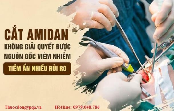 Chữa Amidan bằng Đông y không cần cắt