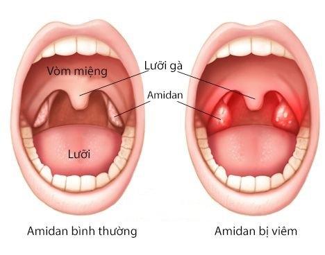 Amidan là gì? Khi nào nên cắt Amidan?